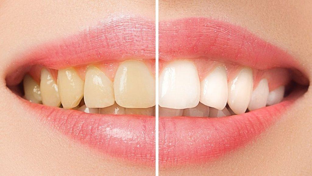 לפני ואחרי הלבנת שיניים