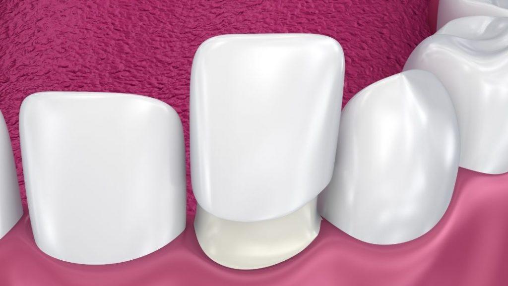 כך זה נראה- ציפוי חרסינה לשיניים