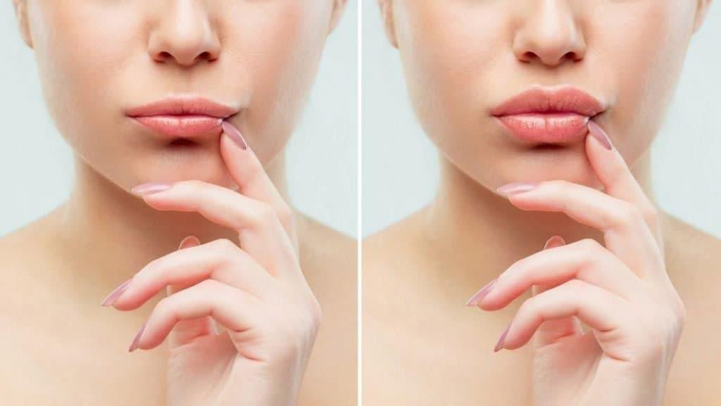 לפני ואחרי הזרקת חומצה היאלורונית לשפתיים