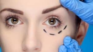 הרמת עפעפיים – ניתוח קוסמטי לשיפור מראה הפנים