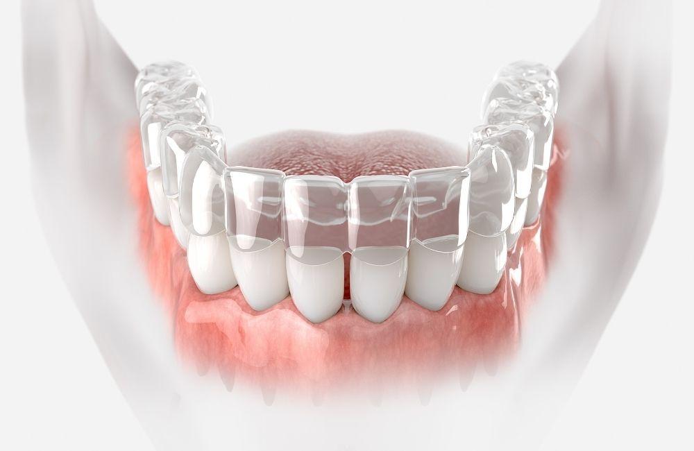 פתרון לשיניים עקומות
